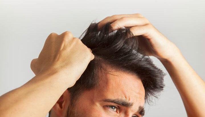 Muškarac koji prstima obe ruke prolazi kroz svoju kosu