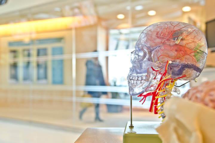 Model makete lobanje sa prikazom obojenih krvnih sudova